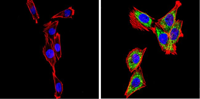 SREBP2 Antibody (PA1-338) in Immunofluorescence