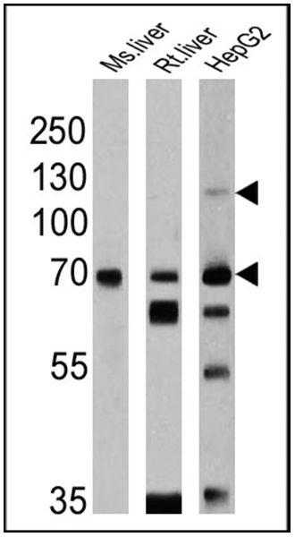 SREBP2 Antibody (PA1-338) in Western Blot