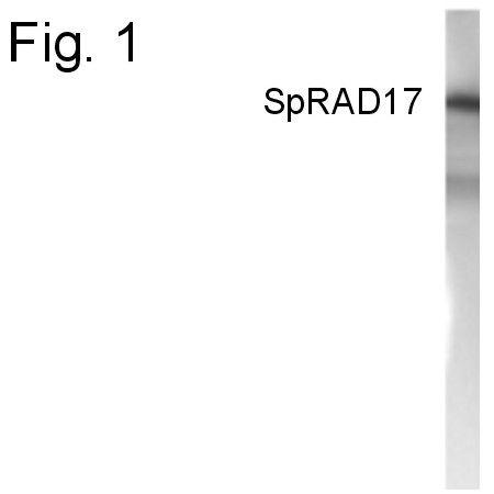 RAD17 Antibody (PA1-4131) in Western Blot