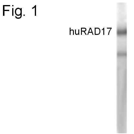 RAD17 Antibody (PA1-4132) in Western Blot