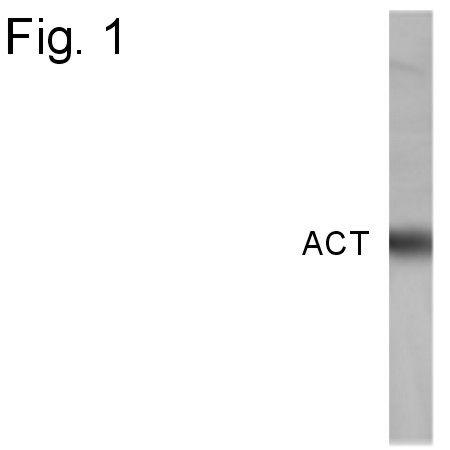 SERPINA3 Antibody (PA1-4150)