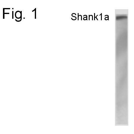 SHANK1 Antibody (PA1-4179) in Western Blot
