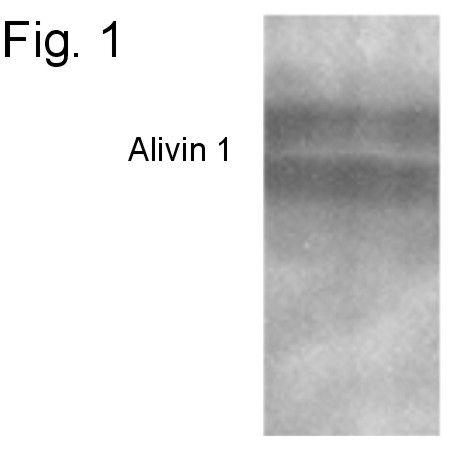 Alivin 1 Antibody (PA1-4357) in Western Blot