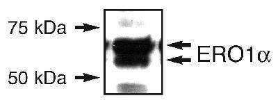 ERO1L Antibody (PA1-46120) in Western Blot