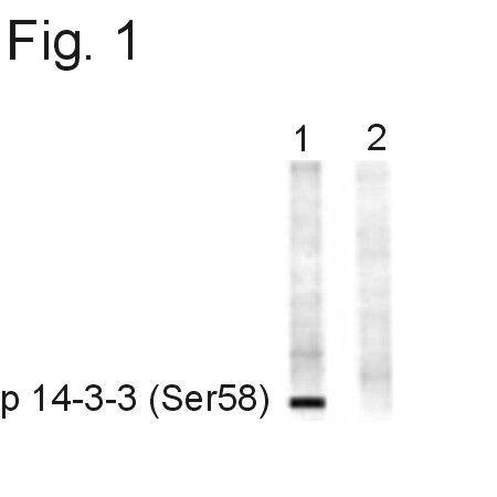 Phospho-14-3-3 beta (Ser58) Antibody (PA1-4612) in Western Blot