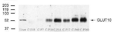 GLUT10 Antibody (PA1-46137) in Western Blot
