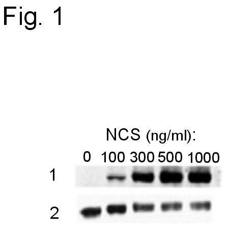 Phospho-ATF2 (Ser490, Ser498) Antibody (PA1-4613) in Western Blot