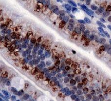 TRPA1 Antibody (PA1-46159)