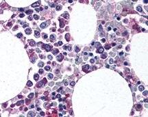 ITGAM + ITGAX Antibody (PA1-46162)