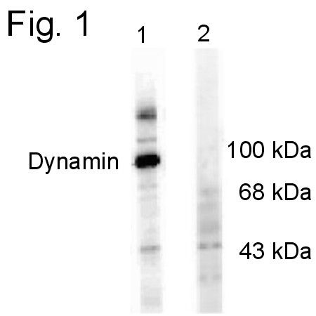 Phospho-Dynamin 1 (Ser774) Antibody (PA1-4620) in Western Blot