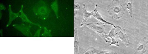 STIM1 Antibody (PA1-46217) in Immunocytochemistry