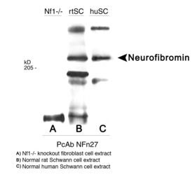 NF1 Antibody (PA1-46246) in Western Blot