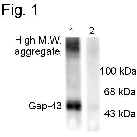 Phospho-GAP43 (Ser41) Antibody (PA1-4626) in Western Blot