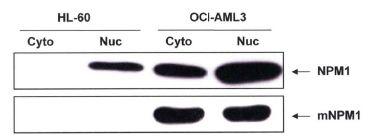 NPM1 (mutant) Antibody (PA1-46356) in Western Blot