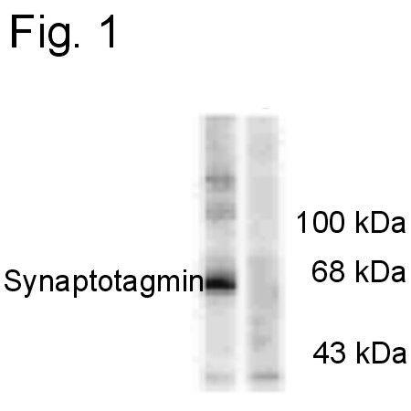Phospho-Synaptotagmin 1 (Thr202) Antibody (PA1-4642) in Western Blot