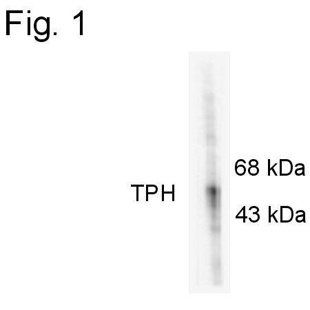 Phospho-Tryptophan Hydroxylase (Ser58) Antibody (PA1-4644) in Western Blot