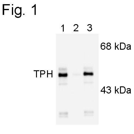Phospho-Tryptophan Hydroxylase (Ser260) Antibody (PA1-4645)