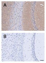 BAI1 Antibody (PA1-46465)