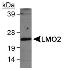 LMO2 Antibody (PA1-46477) in Western Blot