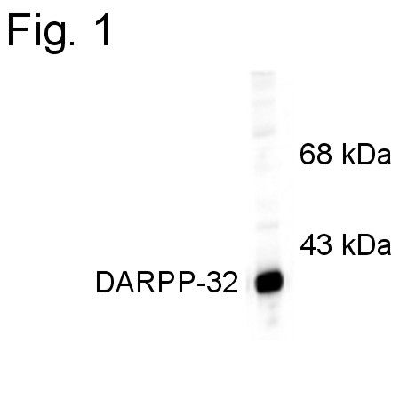DARPP-32 Antibody (PA1-4650) in Western Blot