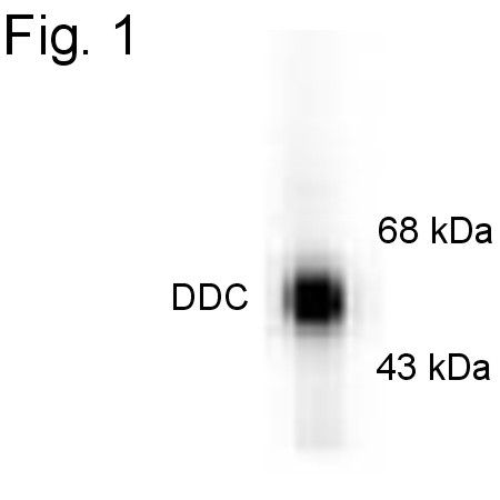DOPA Decarboxylase Antibody (PA1-4651)