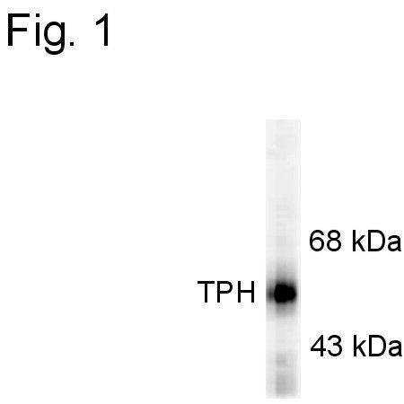 Tryptophan Hydroxylase Antibody (PA1-4678) in Western Blot