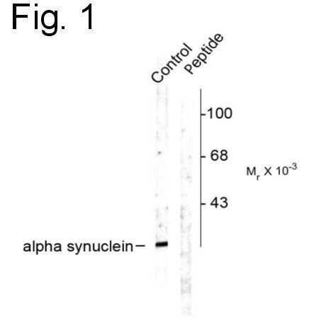 Phospho-alpha Synuclein (Ser129) Antibody (PA1-4686) in Western Blot