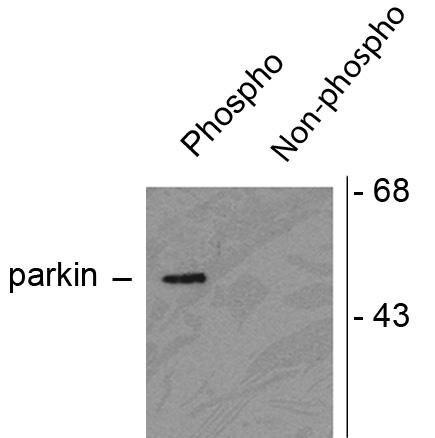 Phospho-Parkin (Ser378) Antibody (PA1-4735) in Western Blot