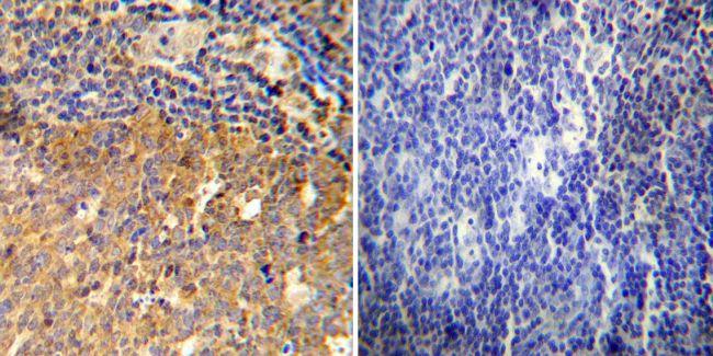Glucocorticoid Receptor Antibody (PA1-511A) in Immunohistochemistry