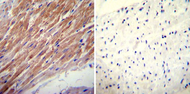 Glucocorticoid Receptor alpha Polyclonal Antibody