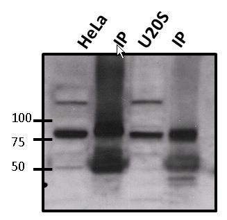 ATRIP Antibody (PA1-519) in Immunoprecipitation