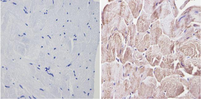 CLOCK Antibody (PA1-520) in Immunohistochemistry (Paraffin)