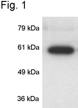CaMKIV Antibody (PA1-542) in Western Blot