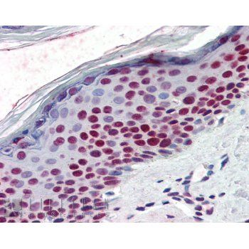 RCC1 Antibody (PA1-5868) in Immunohistochemistry (Paraffin)