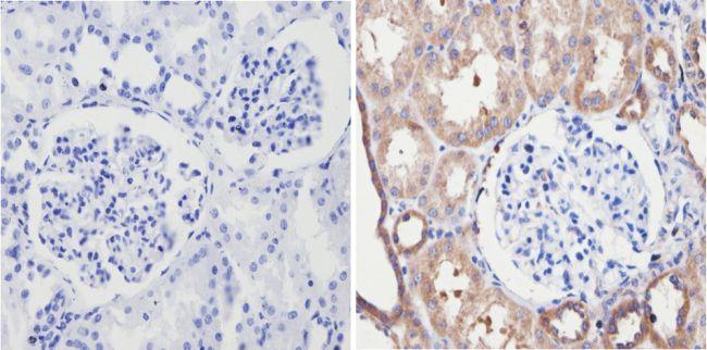 Endostatin Antibody (PA1-601) in Immunohistochemistry (Paraffin)