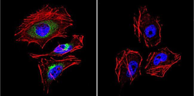 LAMP2 Antibody (PA1-655) in Immunofluorescence