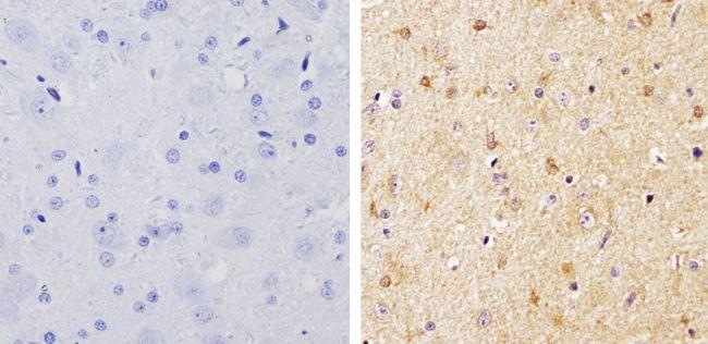beta-Arrestin 1,2 Antibody (PA1-730) in Immunohistochemistry (Paraffin)