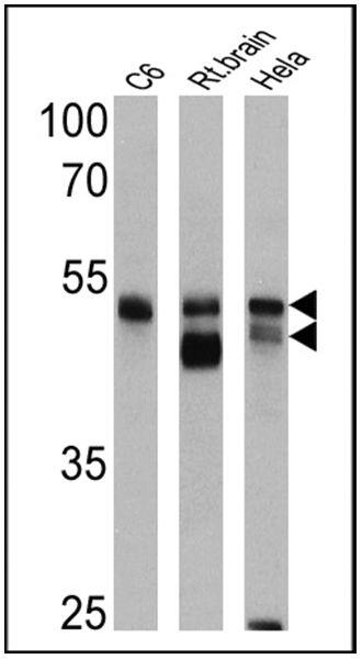 beta-Arrestin 1,2 Antibody (PA1-730) in Western Blot