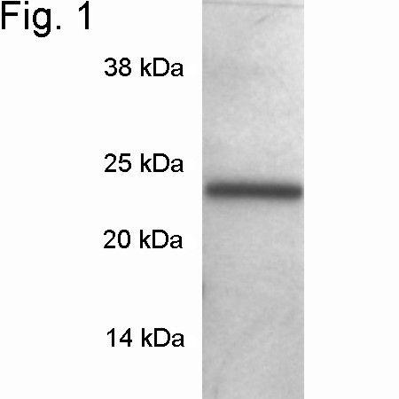 SNAP23 Antibody (PA1-738) in Western Blot