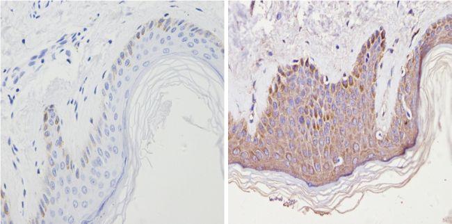 CNR2 Antibody (PA1-746A) in Immunohistochemistry (Paraffin)