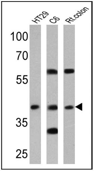 CNR2 Antibody (PA1-746A) in Western Blot
