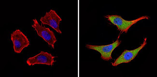 BACE2 Antibody (PA1-753)