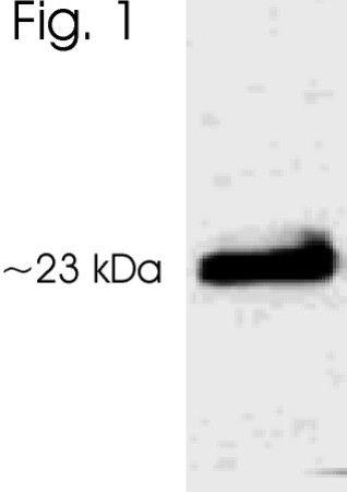 Phospho-Serotonin N-AT (Thr29) Antibody (PA1-761)