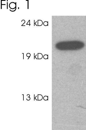 RAB3c Antibody (PA1-772) in Western Blot