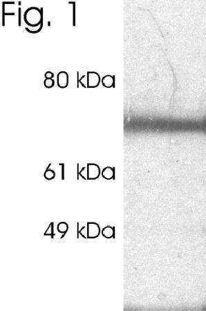 RPH3A Antibody (PA1-774) in Western Blot