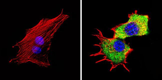 Tryptophan Hydroxylase Antibody (PA1-777) in Immunofluorescence
