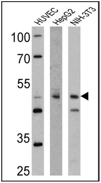 Tryptophan Hydroxylase Antibody (PA1-777) in Western Blot