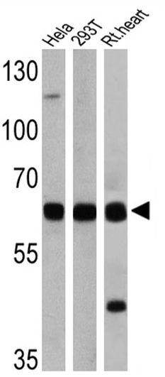 FOXO1 Antibody (PA1-804)