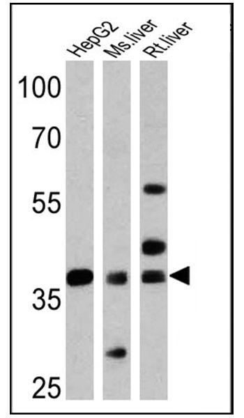 FOXA3 Antibody (PA1-813)