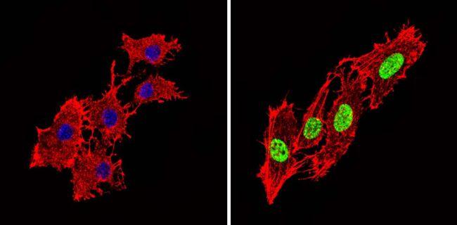 Phospho-PPAR alpha (Ser12) Antibody (PA1-820) in Immunofluorescence